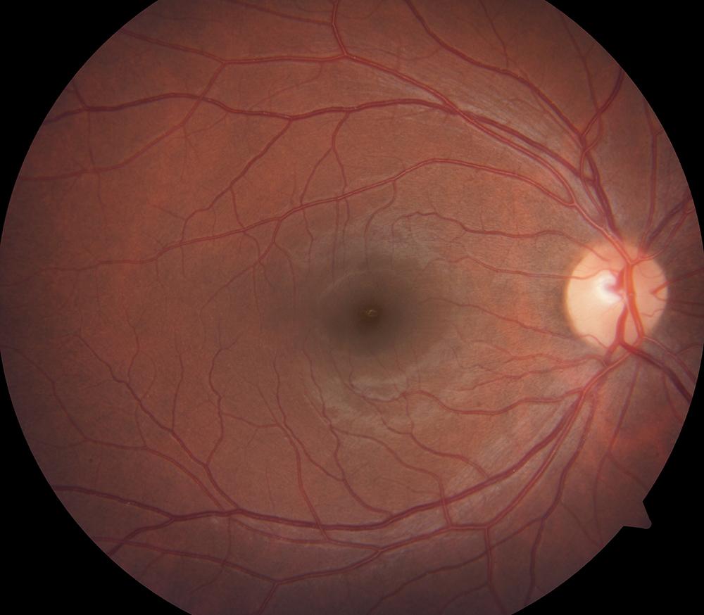 Drs' Slazus Ophthalmologists | Eye Disorders | Diabetic Retinopathy