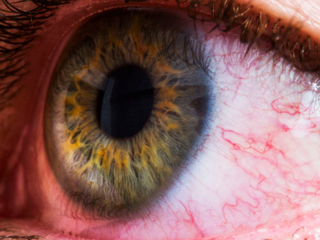 Dr's Slazus Ophthalmologists | Common eye disorders