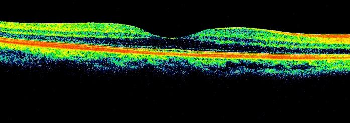 Drs' Slazus Ophthalmologists | Eye Disorders | Macular Degeneration